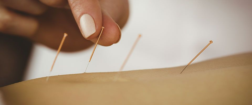 Acupuncture and Pain Management